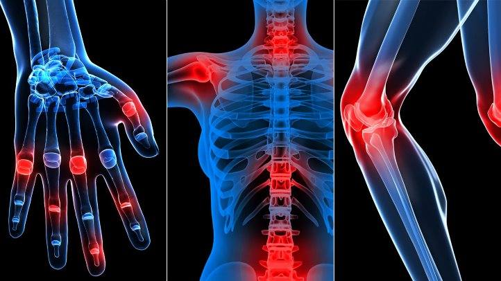 artroza tratament spondilartroza