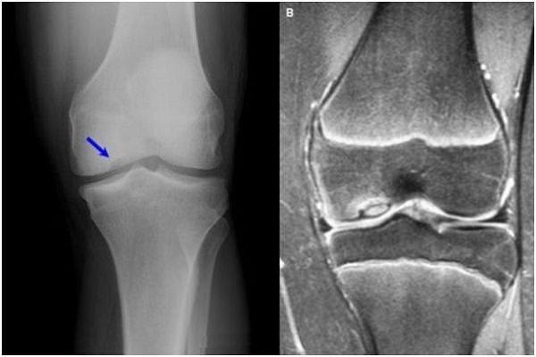 artroză 2-3 grade a articulației șoldului