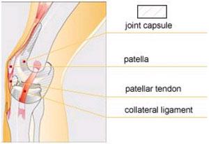 articulația genunchiului puternic bolnavă vasodilatatoare pentru osteochondroza cervicală