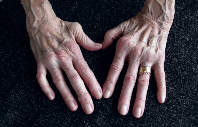 cum se tratează artroza 2 artroza umărului decât să trateze