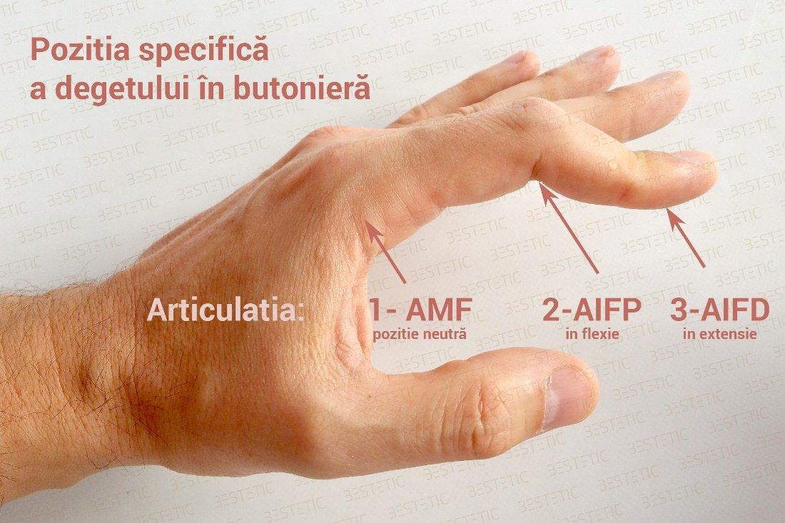 tratamentul leziunii ligamentului genunchiului