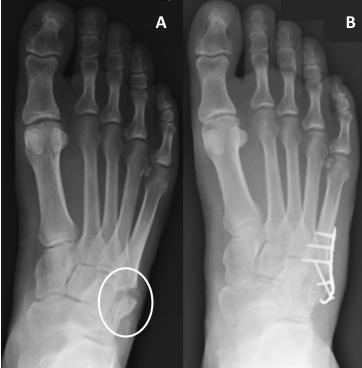 osteoartrita unguentului articulațiilor șoldului
