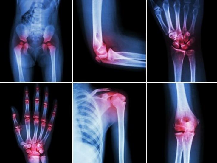 dureri articulare la brațele și picioarele gimnastică