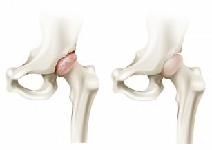 unguente analgezice pentru coxartroza articulației șoldului