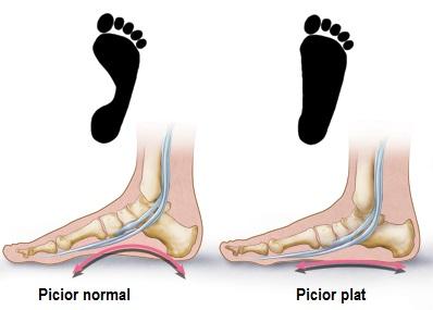 articulația piciorului mic doare