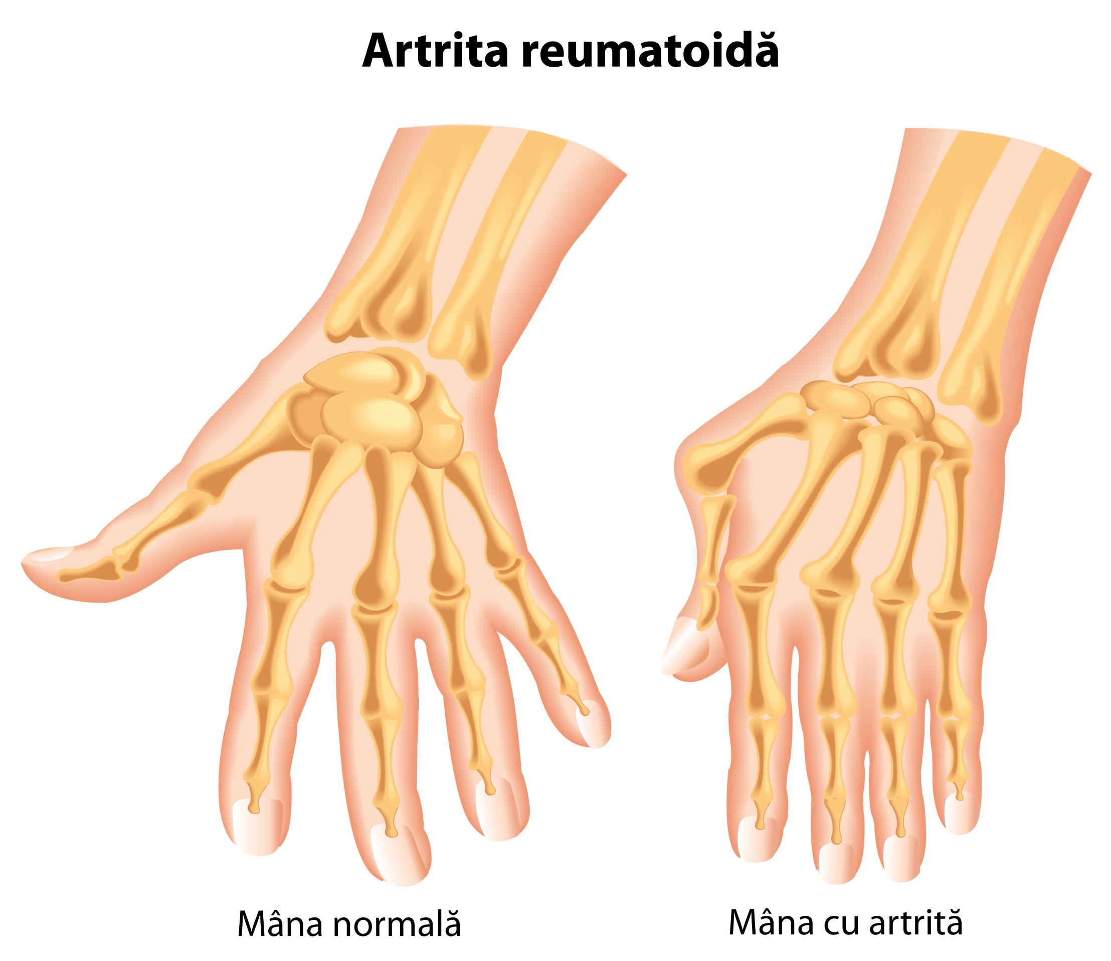 artroza deformantă a tratamentului degetelor