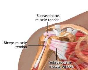 inflamația tendoanelor în articulația umărului recenzii de genunchi de gel