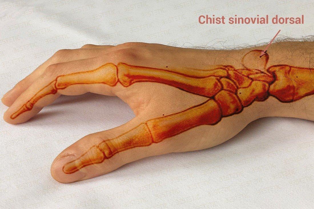 articulația încheieturii mâinii stângi doare dureri articulare severe după antrenament
