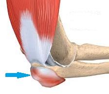 osteochondroza și artroza tratamentului coloanei lombare