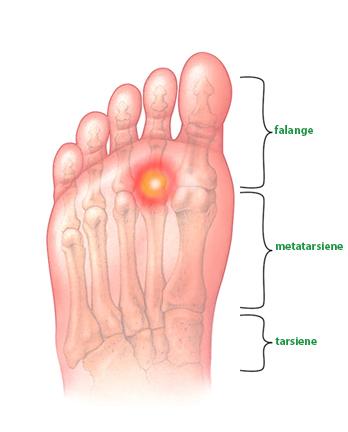 tulburări de menisc ale tratamentului articulațiilor genunchiului
