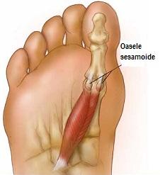 tratamentul brut al articulațiilor de cartofi lapte acru din dureri articulare