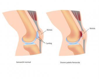 durere în jurul genunchiului durere la nivelul articulației cotului și umărului