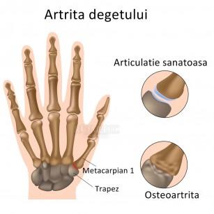 artrita simptomelor degetului index
