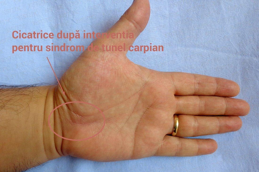 tratamentul sindromului de tunel carpian artrita tratamentul sarcinii articulare