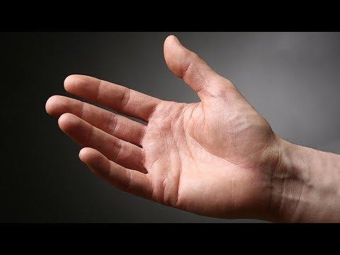 îmbină mâncărimea cu artrita reumatoidă