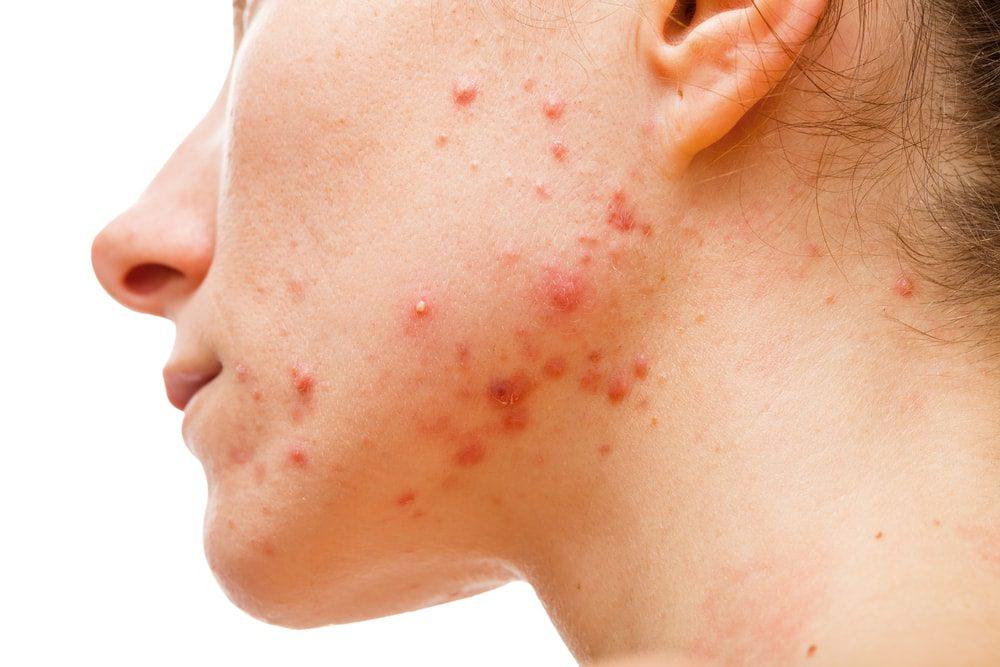 cum să tratezi inflamația facială