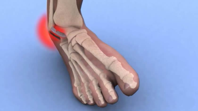 tratamentul cu ozokerită a artrozei îndreptarea durerii la genunchi