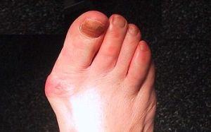 articulația pe picior doare unde degetul mare