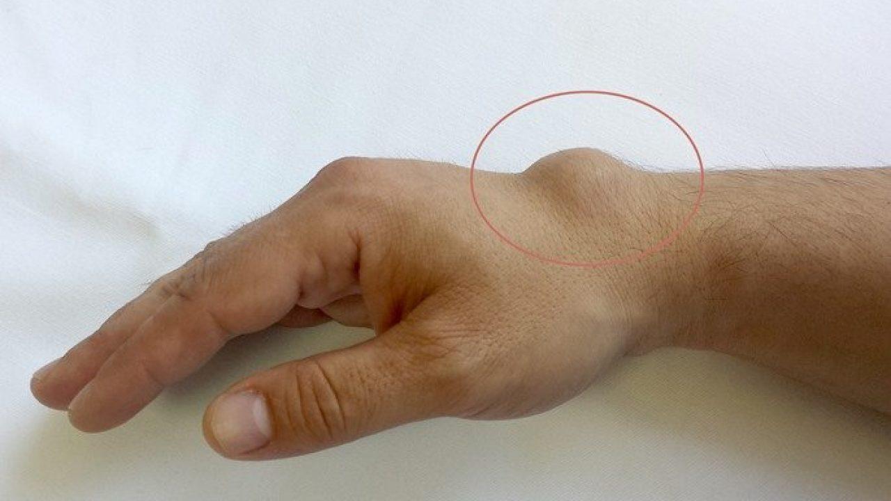 articulația umflată pe braț