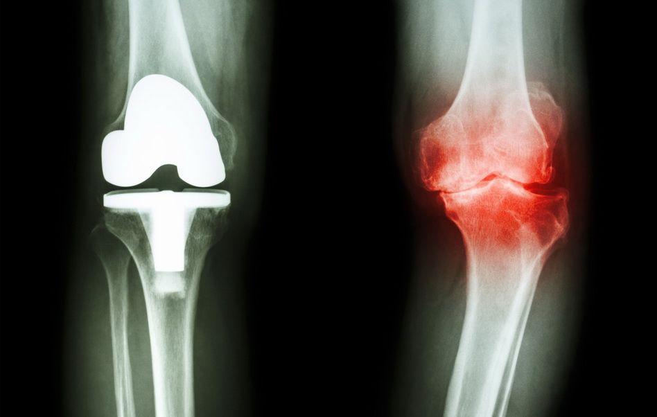 osteopatul vindecă articulațiile ajută la rănirea genunchiului