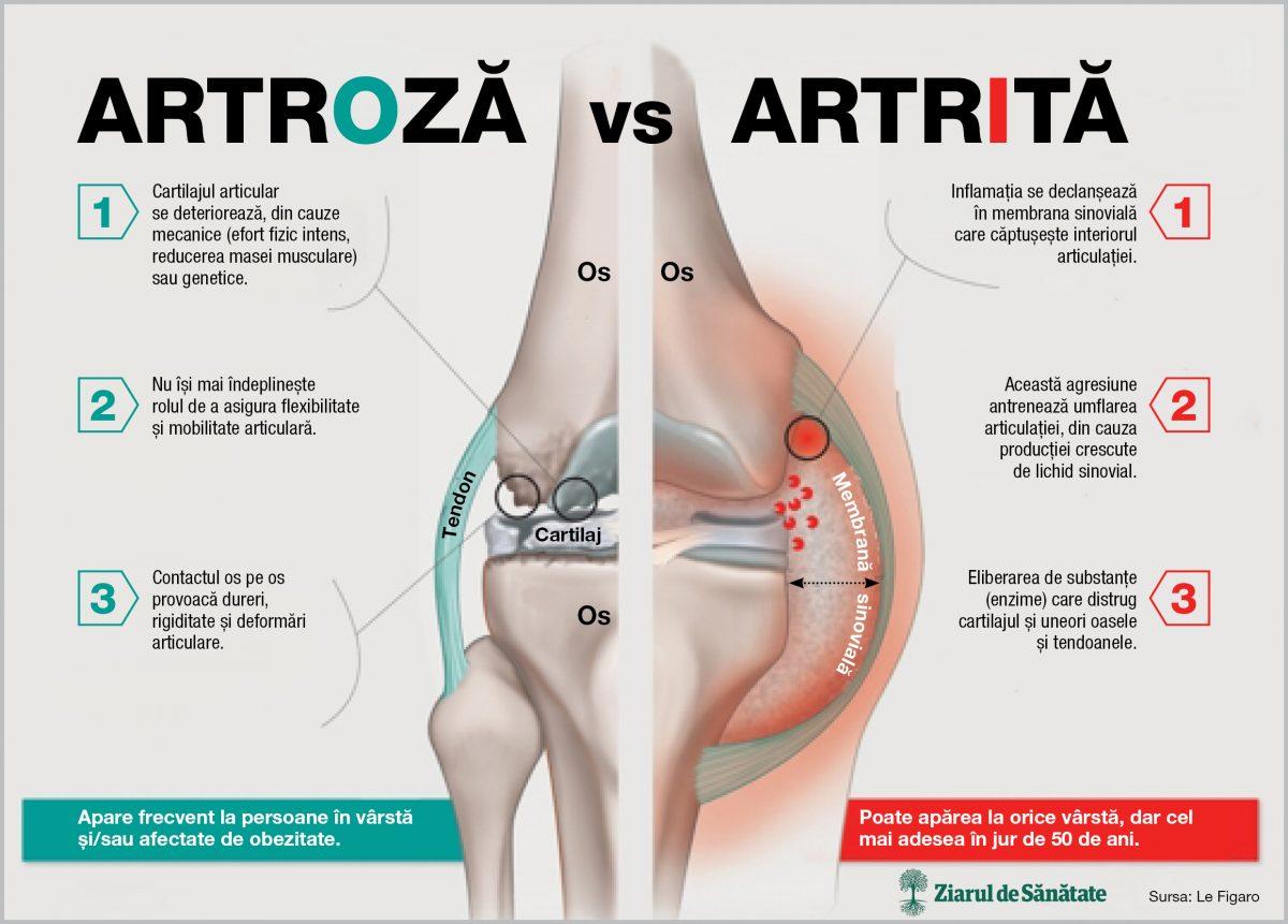artroza sau artrita genunchiului