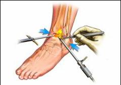durere în articulația genunchiului când întoarceți piciorul artroza genunchiului în tratamentul vârstnicilor