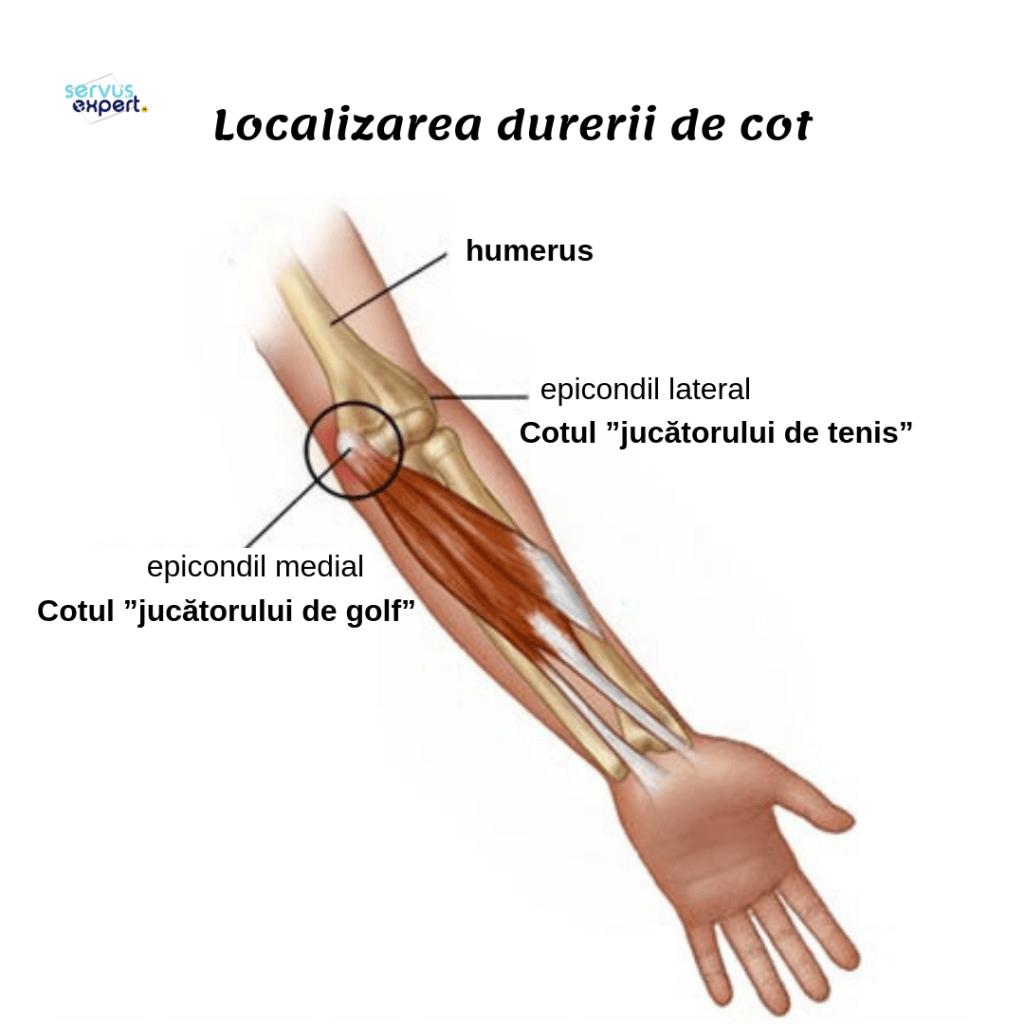 durere și inflamație în articulația cotului
