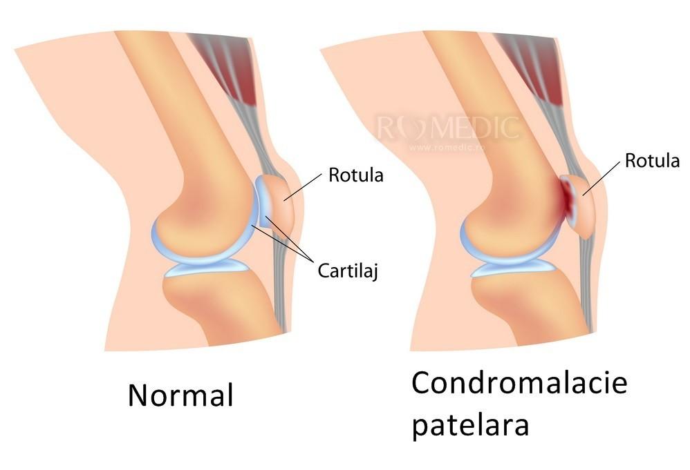 boli ale articulației piciorului inferior și a genunchiului ce umflă articulațiile picioarelor
