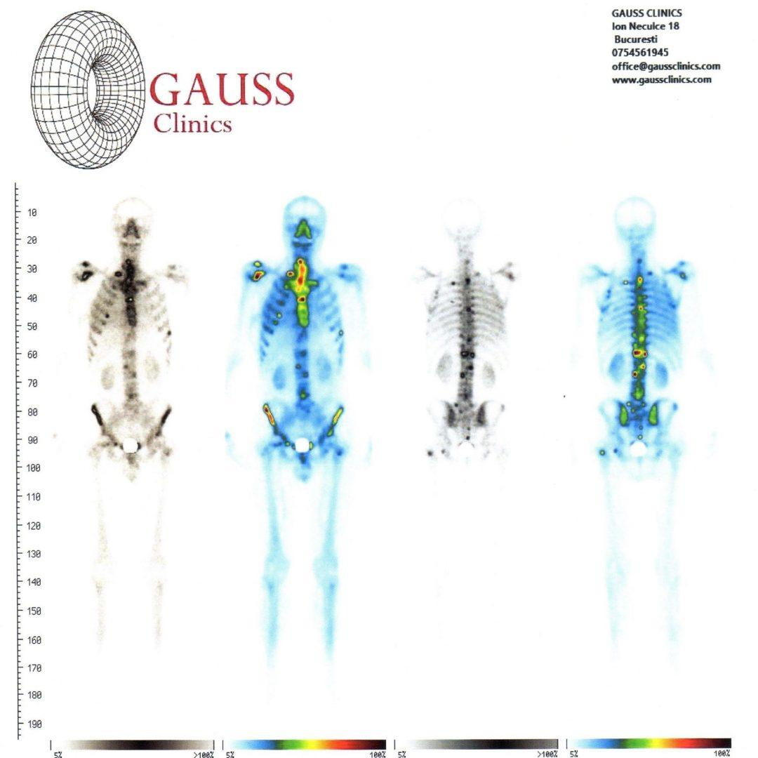 boli oncologice ale oaselor și articulațiilor