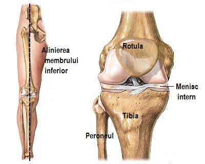 articulația genunchiului puternic bolnavă articulațiile umărului sau mușchii rănesc tratamentul