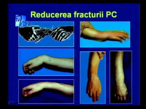 Anghinare în tratamentul articulațiilor