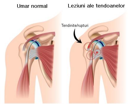 comprimat pentru durere în articulația umărului