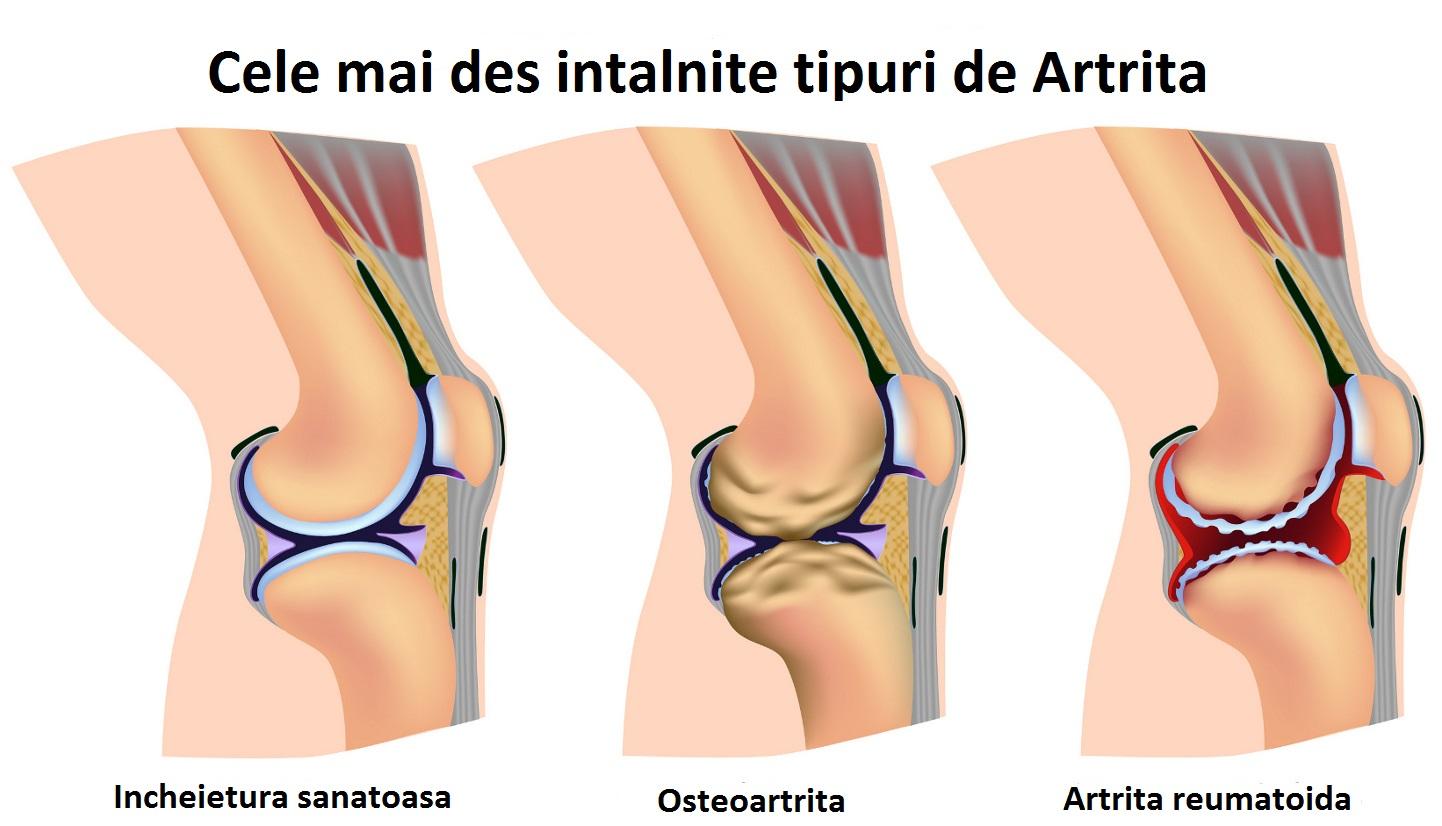 cum se tratează artrita cu călcâi cu artroză