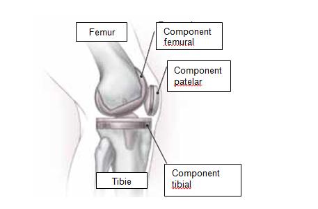 durere după proteze ale genunchiului cum să tratezi rapid articulațiile