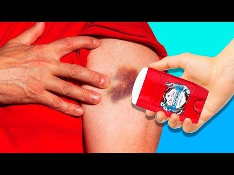 dureri articulare falangeale