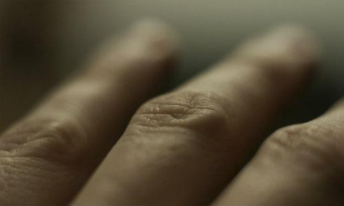 ce durere articulară cu lupus unguent de luxație pentru articulații