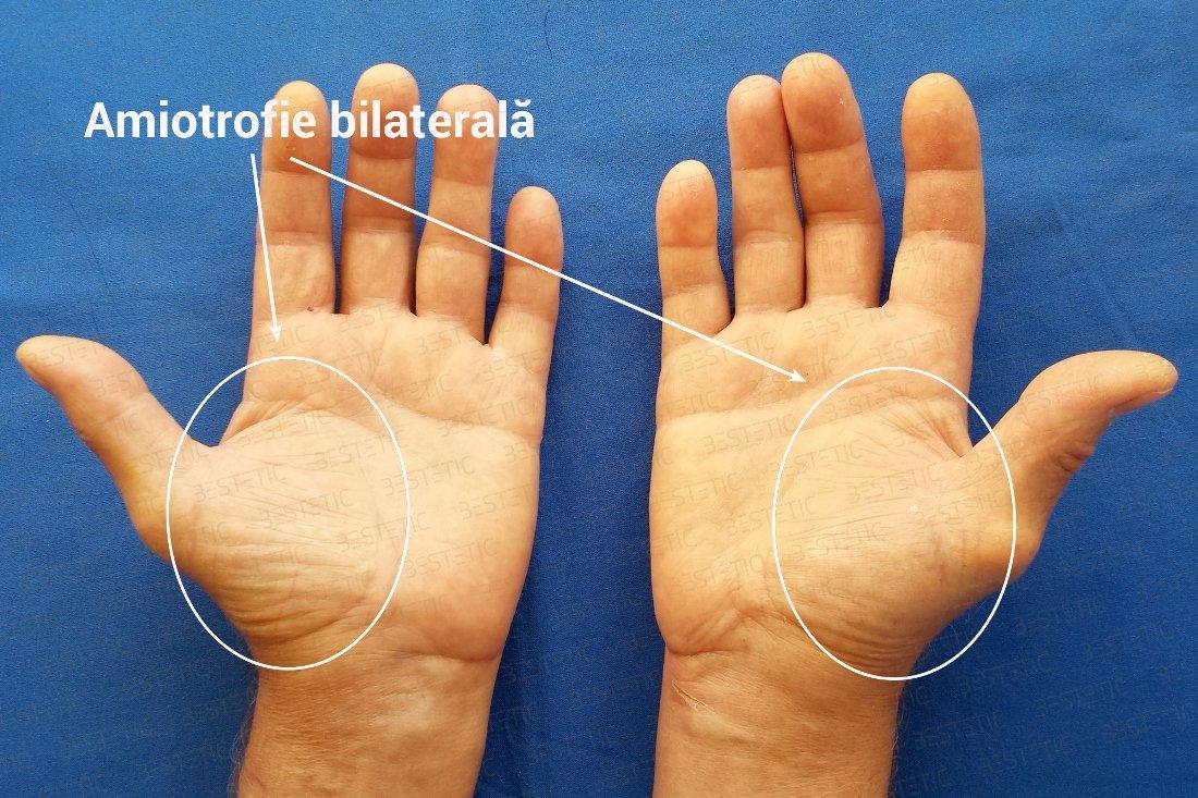 tratamentul sindromului de tunel carpian viață adevărată și de șold fără durere