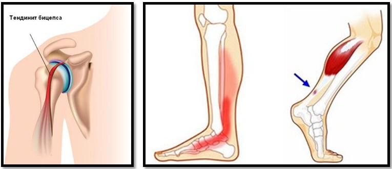 boli legate de vârstă în articulația umărului cum să faci față artritei în brațe