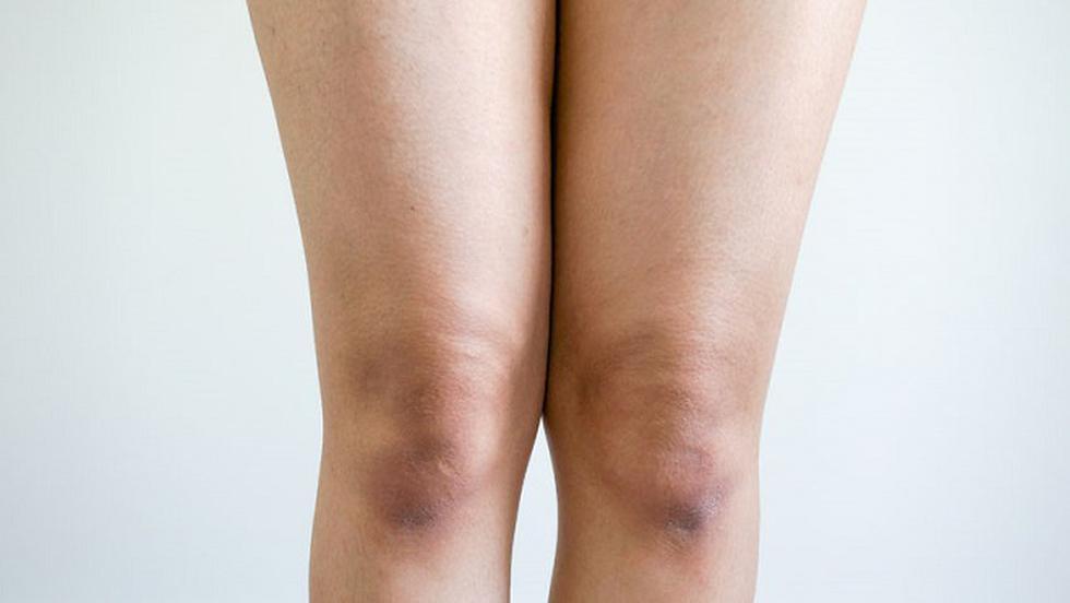 pielea pe articulațiile coatelor și genunchilor artrita articulațiilor medicației piciorului