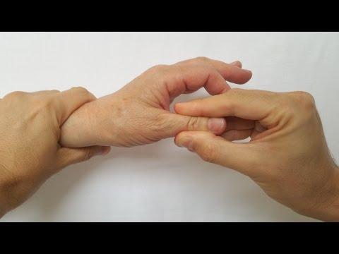 recenzii ale tratamentului cu artroza degetelor