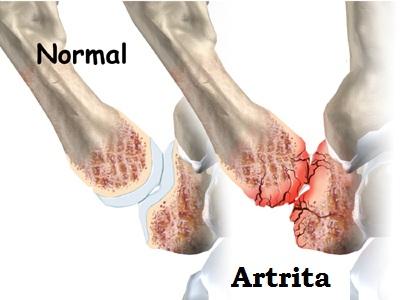 se simțea durere în articulația degetului pe braț semne ale artritei simptomelor articulației genunchiului