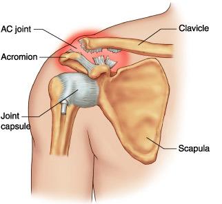 tratamentul articulațiilor și ligamentelor umărului se pot răni toate articulațiile cu osteochondroză