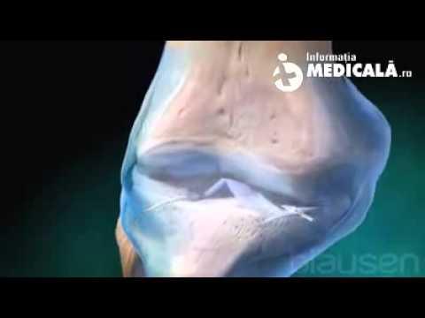 artroza articulațiilor degetelor provoacă boli ale caprinei