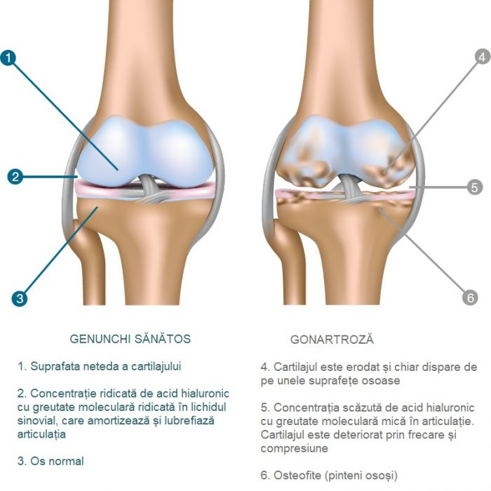 tratarea articulațiilor truskave Ulei ayurvedic pentru dureri articulare